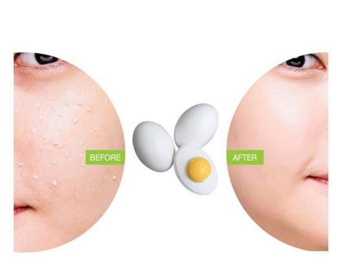 Gel tẩy da chết Holika Holika Smooth Egg Skin